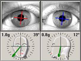 Stopień skrętu oka w odniesieniu do pozycji głowy.