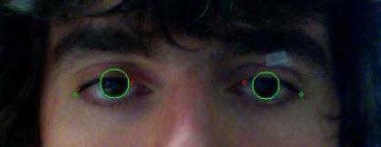System monitorujący rogówkę oka